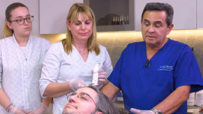 PRP-CON-MICRONEEDLING-PLAY